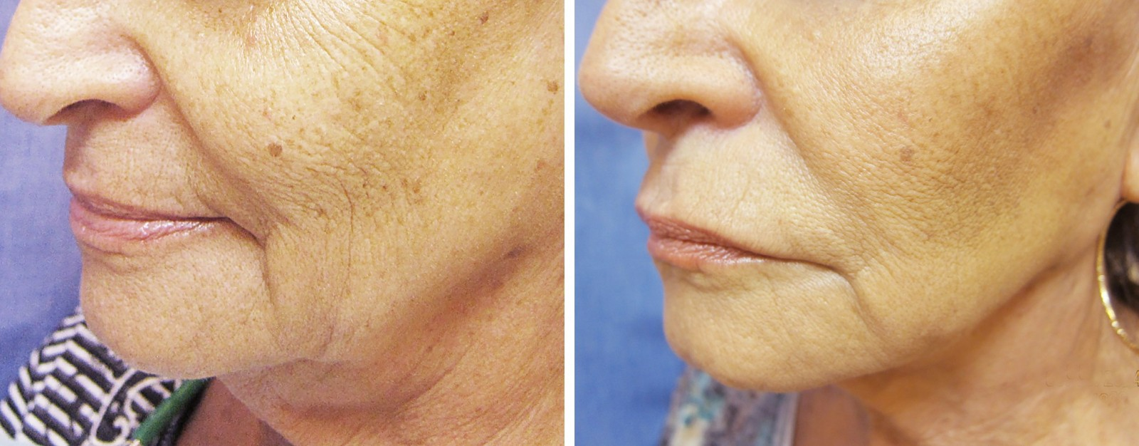 Non-surgical facelift before - after no. 3