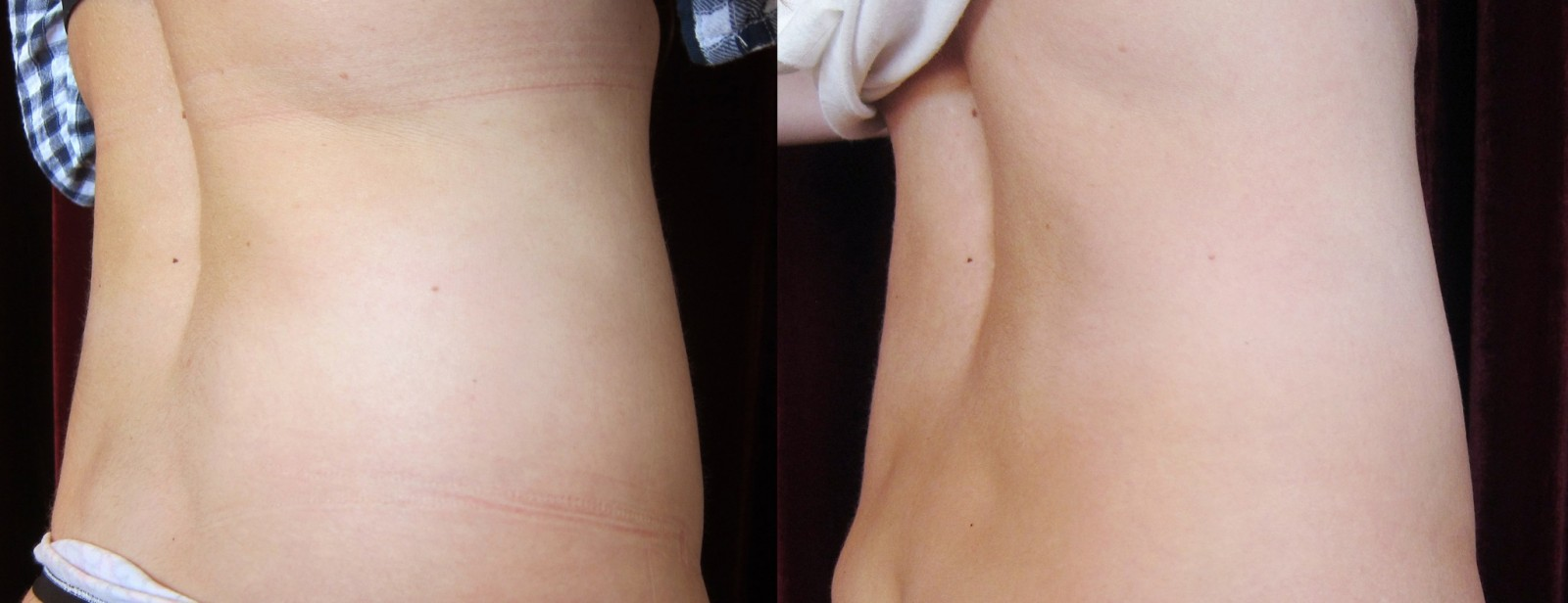 Body contouring Liposonix before and after
