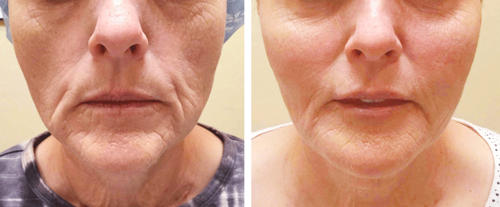 Juvederm facial filler before and after photo no. 1