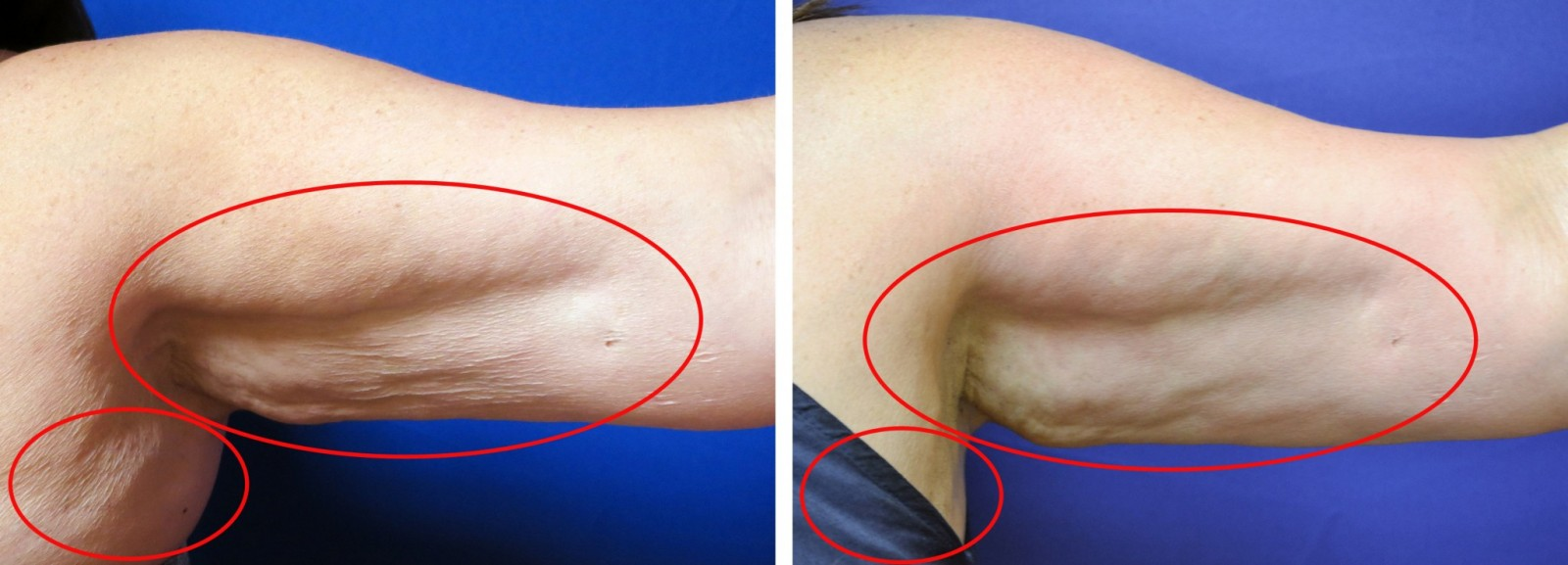 Body contouring Vasershape before and after