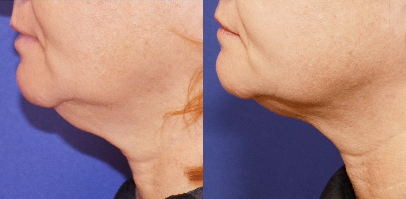 Body contouring Ultherapy before and after