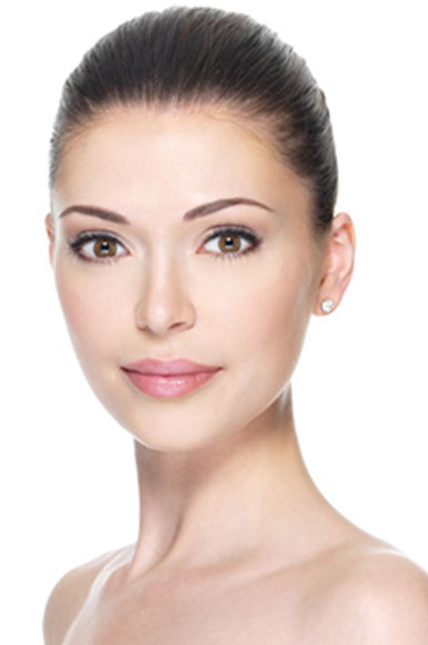 Model image for Juvederm treatment