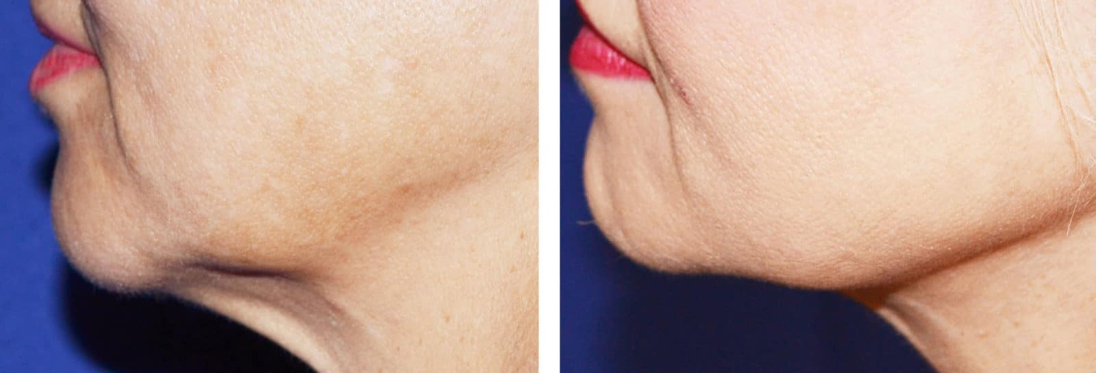 Kybella before/after image no. 2