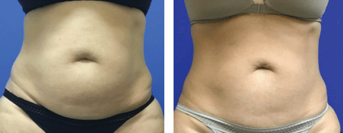 CoolSculpting before after patient image