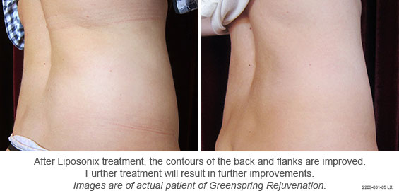 Fat destroying treatment